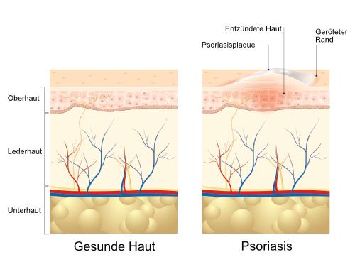 Schaubild Haut mit Psoriasis (Schuppenflechte)