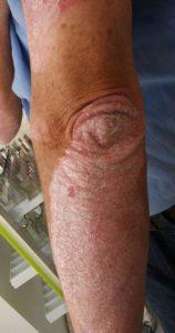 Schuppenflechte am Ellbogen vor der Einnahme von Alyvium®
