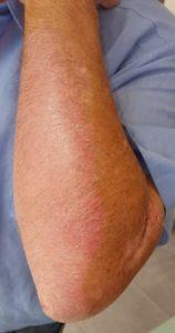 Die Schuppenflechte am Arm ist dank Alyvium abgeheilt.